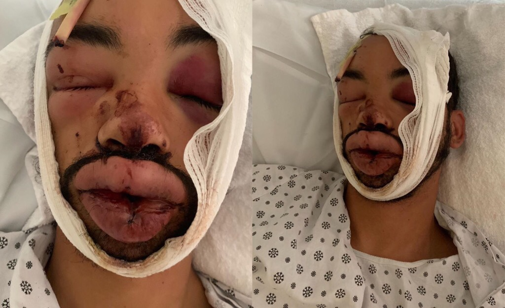 "Hector Candelier ""Luigi"" Was Allegedly Attacked By NYPD"